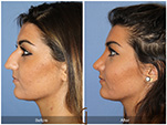 Orange County Facial Plastic Surgeon Teenage Rhinoplasty Patient Number #19