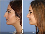 Orange County Facial Plastic Surgeon Teenage Rhinoplasty Patient Number #20