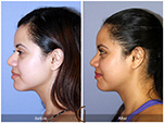 Orange County Facial Plastic Surgeon Teenage Rhinoplasty Patient Number #22